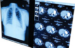 Lung Cancer CT Screening